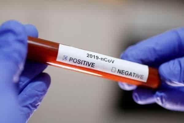 وضعیت واکسن و داروهای مورد نیاز برای ویروس جدید کرونا