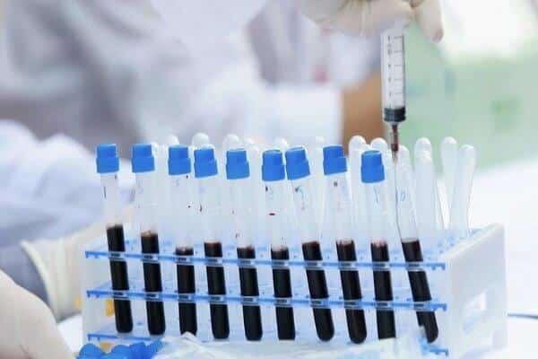 دومین بیمار «اچ آی وی» به طور کامل بهبود پیدا کرد